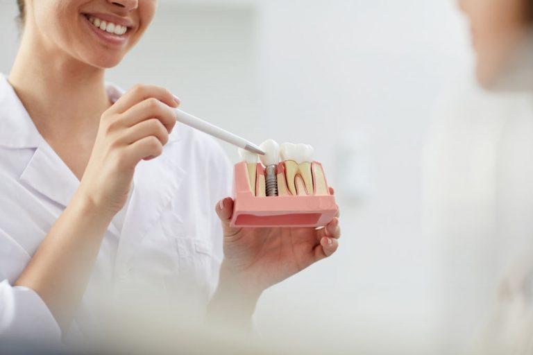 Implantes - Clínica Dental Ensanche de Vallecas