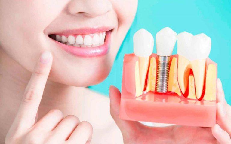 Endodoncia - Clínica Dental Ensanche de Vallecas