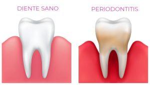 Periodoncia - Clínica Dental Ensanche de Vallecas
