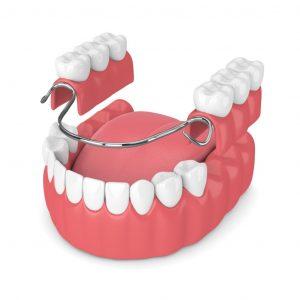 Prótesis dental - Clínica Dental Ensanche de Vallecas