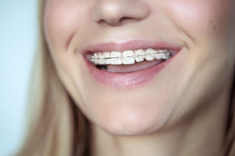 Ortodoncia - Clínica Dental Ensanche de Vallecas