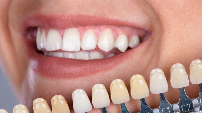 Odontologia estetica | Clínica Dental Ensanche de Vallecas