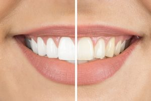 Blanqueamiento Dental | Clínica Dental Ensanche de Vallecas