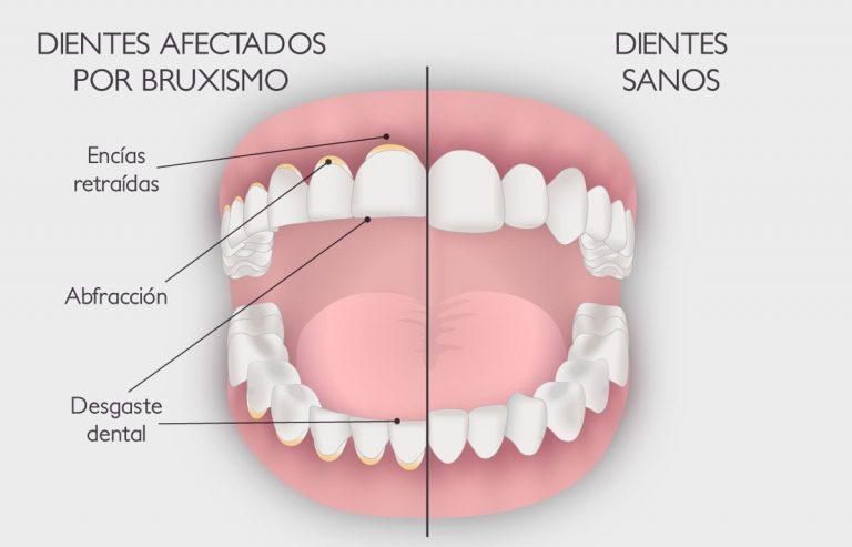 Bruxismo | Clínica Dental Ensanche de Vallecas