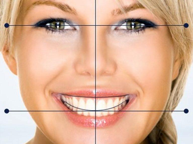 Diseño digital de la sonrisa - Clínica Dental Ensanche de Vallecas