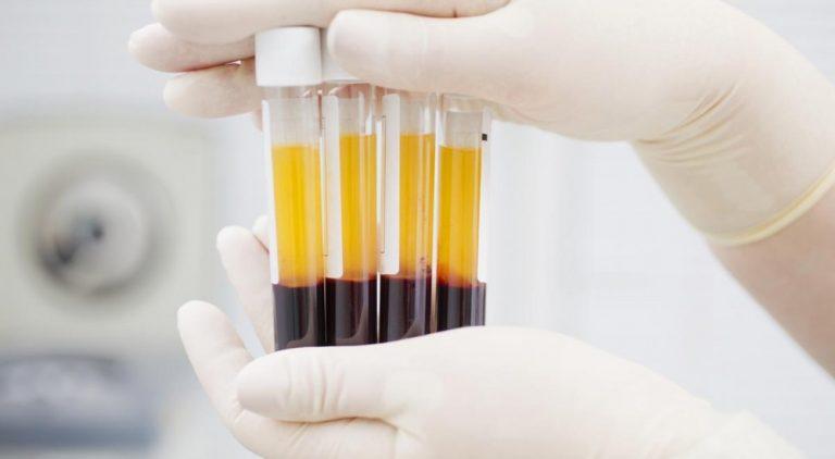 Tratamiento con plasma rico en factores de crecimiento (PRGF)